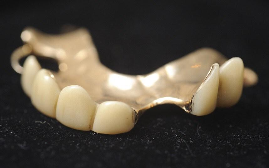 Churchill's dentures